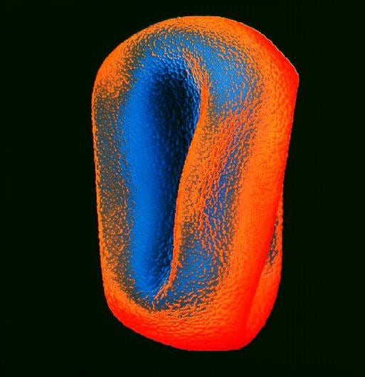spl_b7860409-coloured_sem_of_timothy_grass_pollen