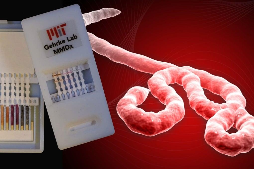 Il test per diagnosticare Ebola in 10 minuti