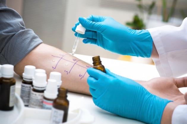 Quanti tipi di allergie esistono?