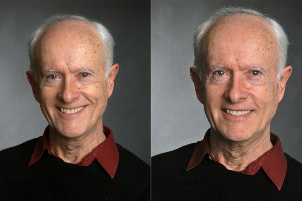 Come distinguere un falso sorriso a colpo d'occhio