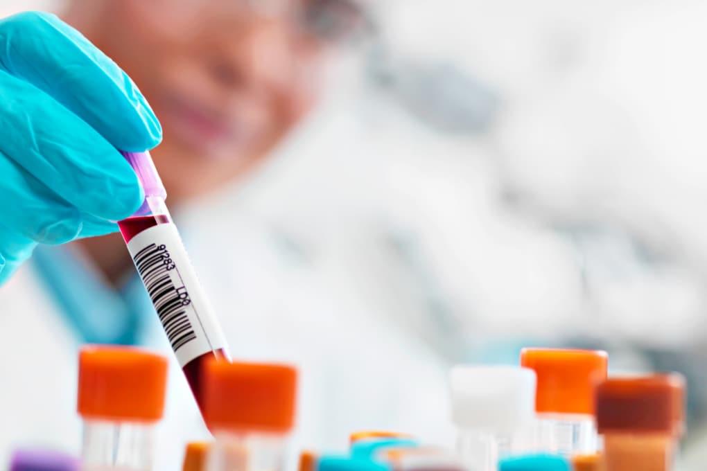 Vaccini: troppa paura di un'iniezione (e troppa disinformazione)