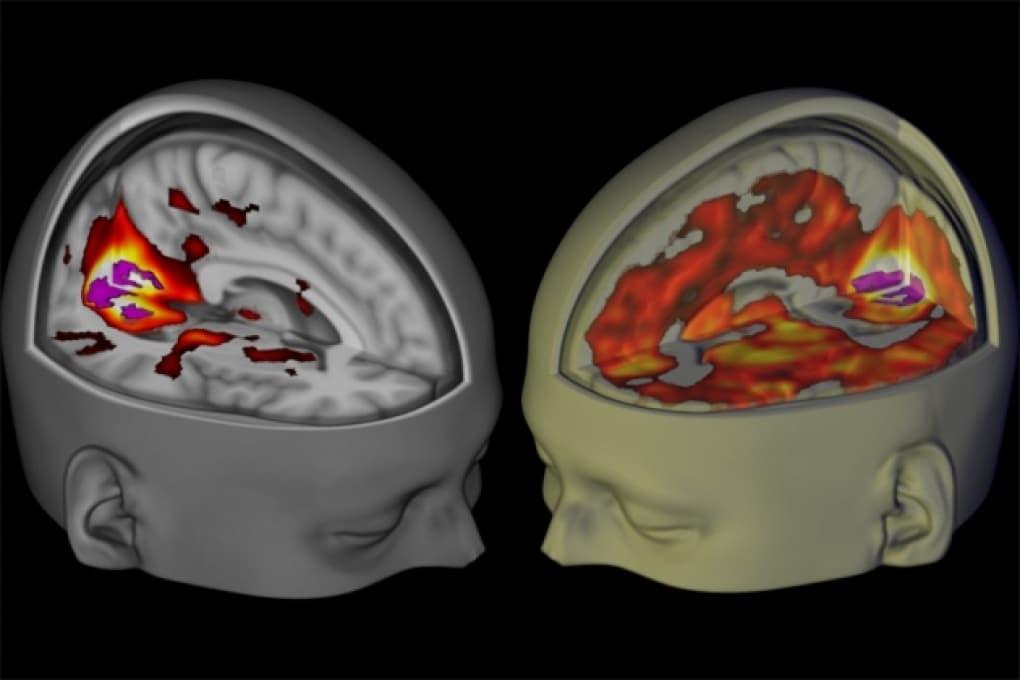 Le prime immagini del cervello sotto LSD, un