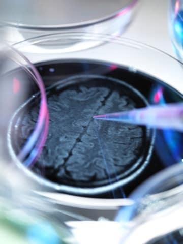 Alzheimer: nuove speranze da un anticorpo
