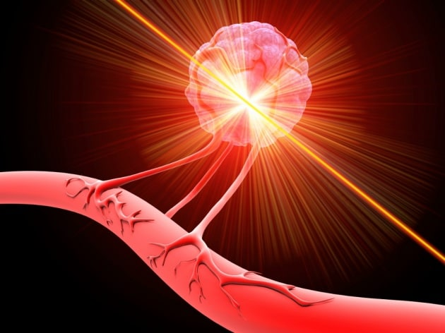 Laser di sangue umano contro i tumori