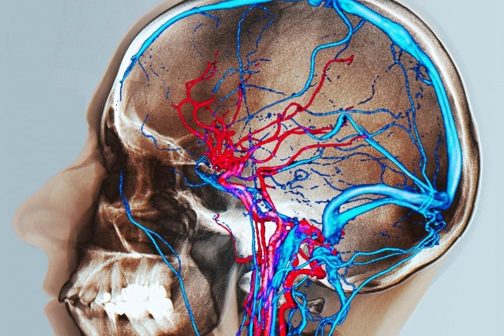 Il cervello intelligente, assetato di sangue