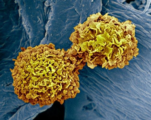 Cancro al seno, più chiare le origini genetiche