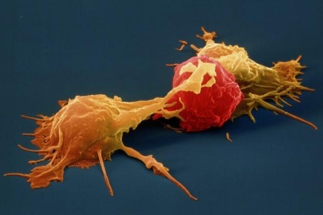 Ricercatori italiani scoprono l'interruttore che spegne le cellule killer dei tumori