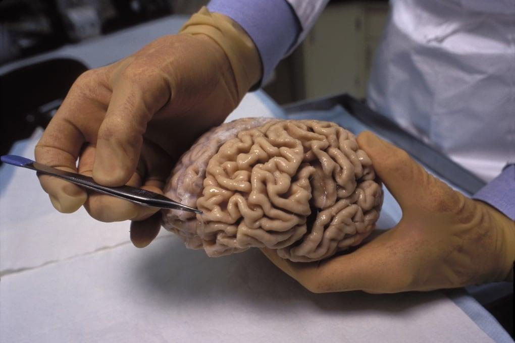 Il morbo di Alzheimer può essere