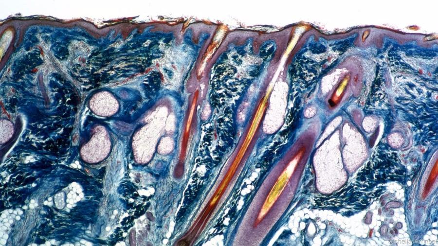 Elena Malysheva su parassiti in una medicina del corpo umana - Succo di carota da un verme