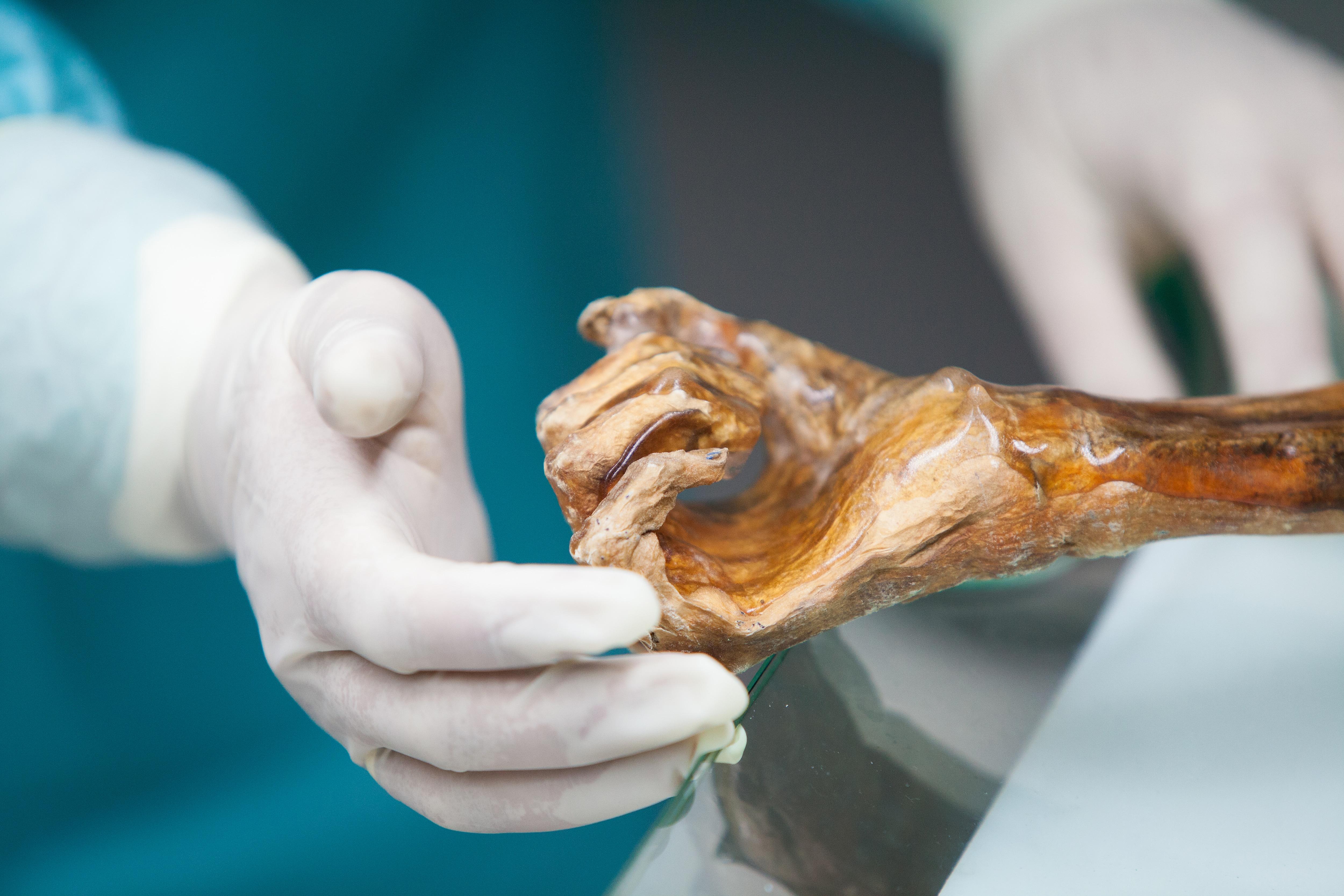 Mummia Oetzi, un batterio per ricostruire storia migrazioni