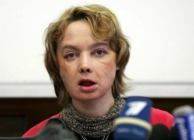 Morta la prima donna ad aver ricevuto un trapianto di faccia