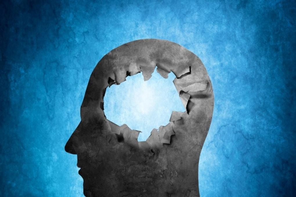 Alzheimer, forse si guarda nel punto sbagliato