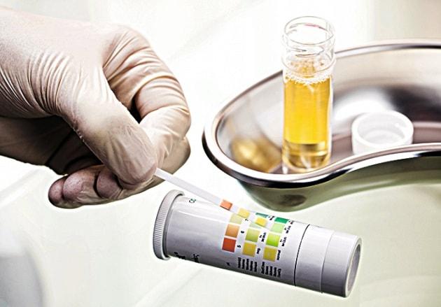 c0134320-urine_test-spl_preview