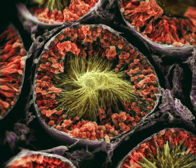 Reversibile l'effetto del vasalgel, il contraccettivo maschile