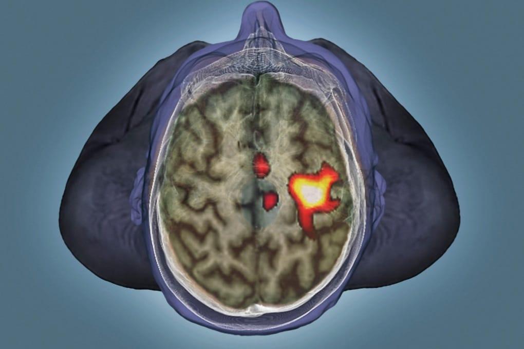 fMRI, 15 anni di ricerche sul cervello da rifare