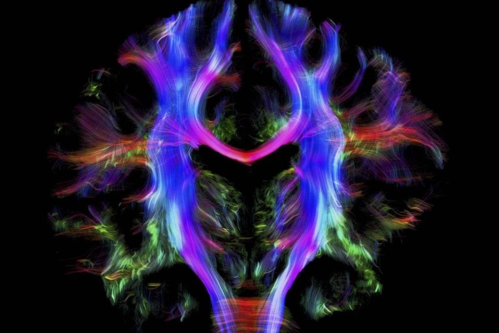 Come sfruttare lo stress a proprio vantaggio