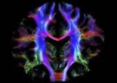 cervellofibre