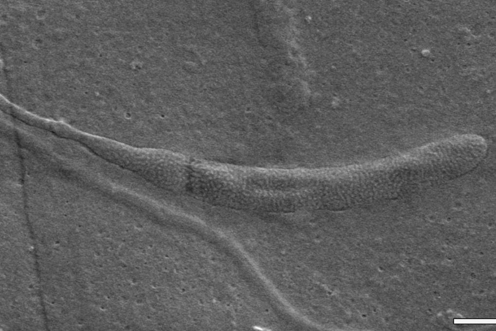 Lo spermatozoo più vecchio del mondo
