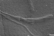spermatoozooprimitivo