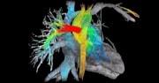 L'intelligenza artificiale che predice gli infarti