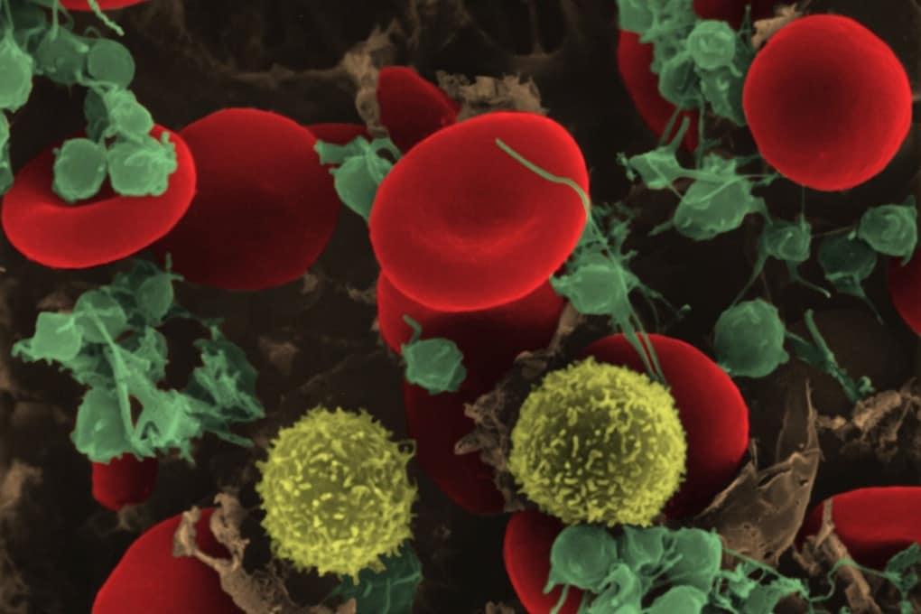 Leucemia, nuove speranze dall'editing genetico
