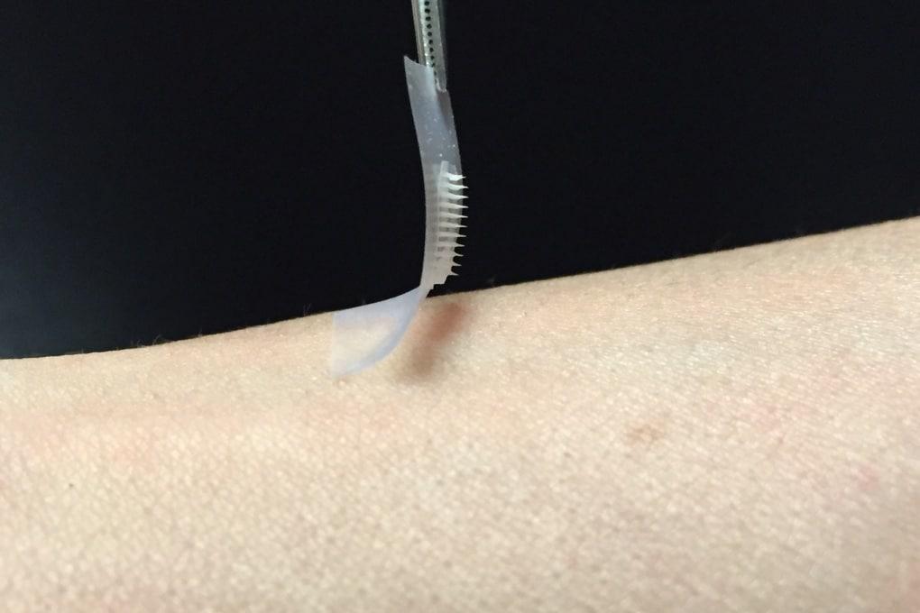 Per i diabetici, insulina in cerotto