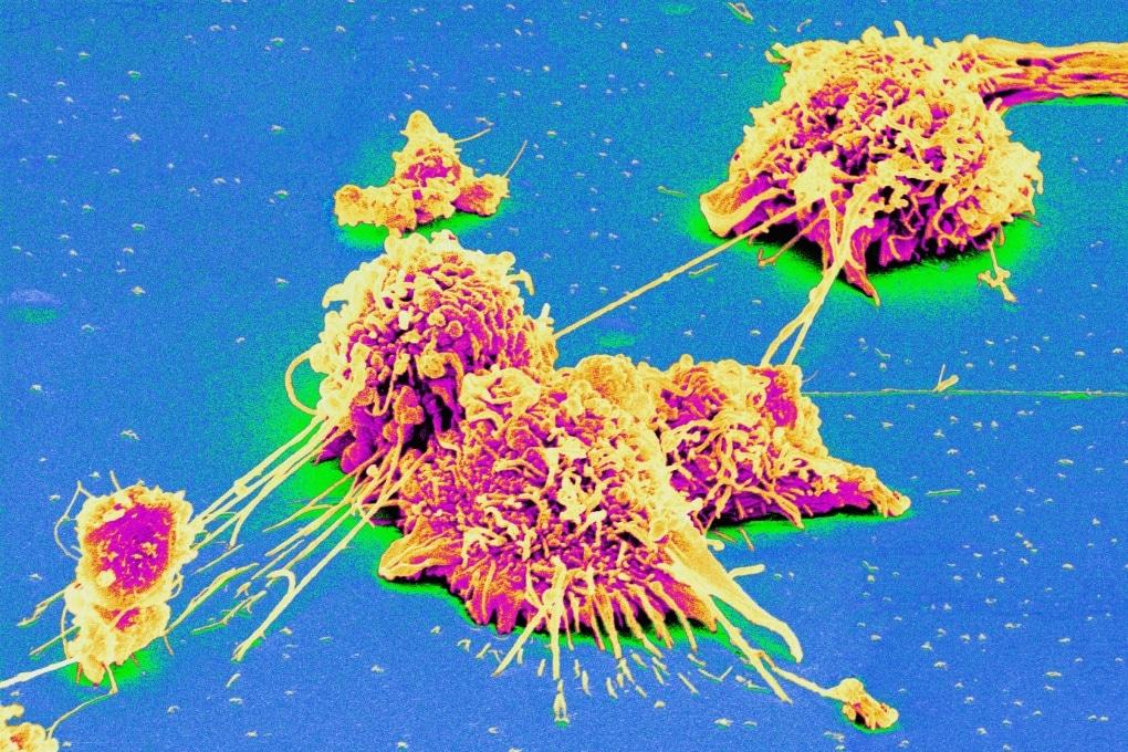 Un interruttore per spegnere il tumore del colon