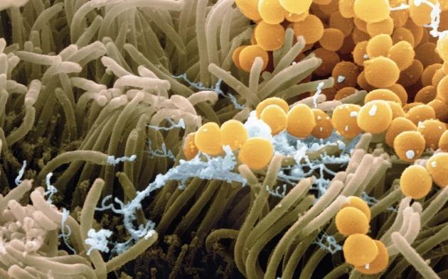 L'antibiotico del futuro è nel nostro naso