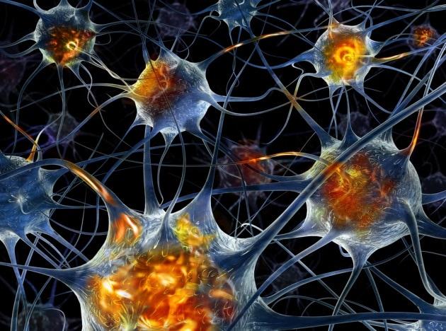 Malattia di Huntington: una cura sperimentale ne rallenta la progressione