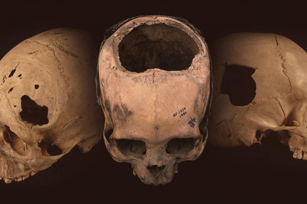 Le sorprendenti capacità chirurgiche degli Inca