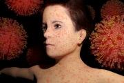 morbillo-contagio