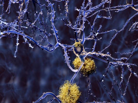 Alzheimer, malattia di Alzheimer, demenza senile, proteine tau, proteine beta-amiloidi, cervello