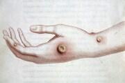 vaiolobovino