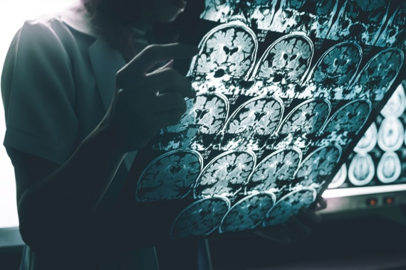Alzheimer, malattia di Alzheimer, demenza senile, proteine tau, proteine beta-amiloidi