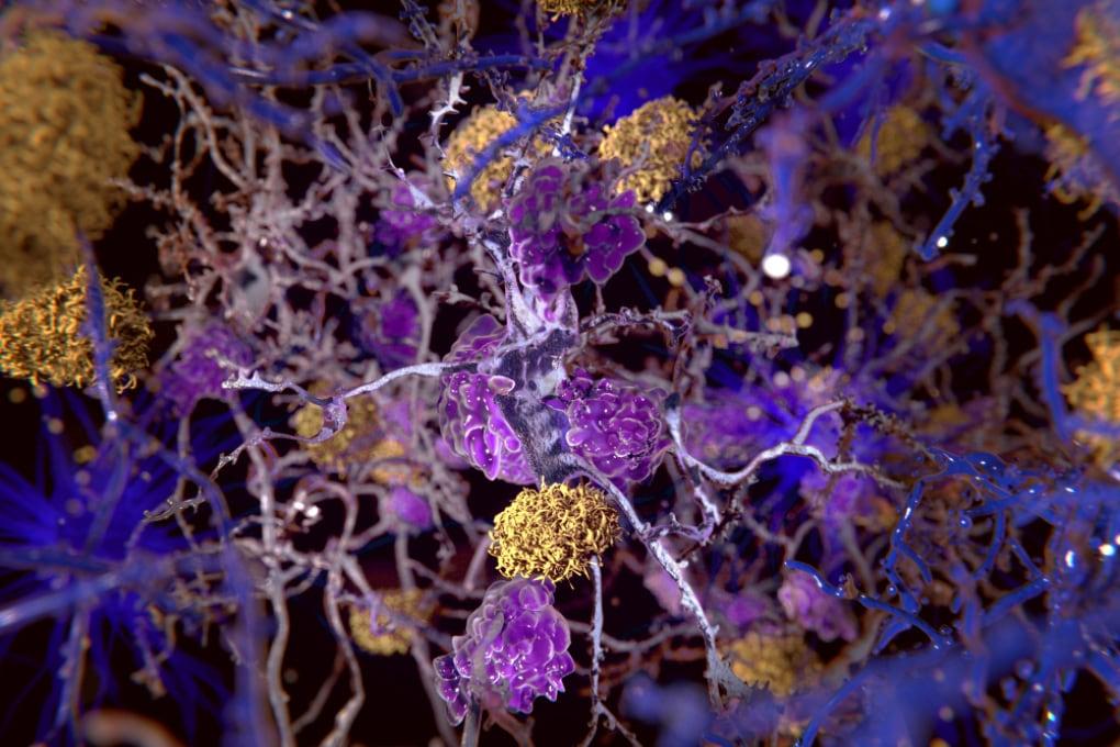 Le proteine beta amiloidi proteggono il cervello dall'herpes