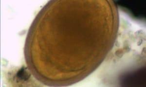 parassiti, infezioni intestinali