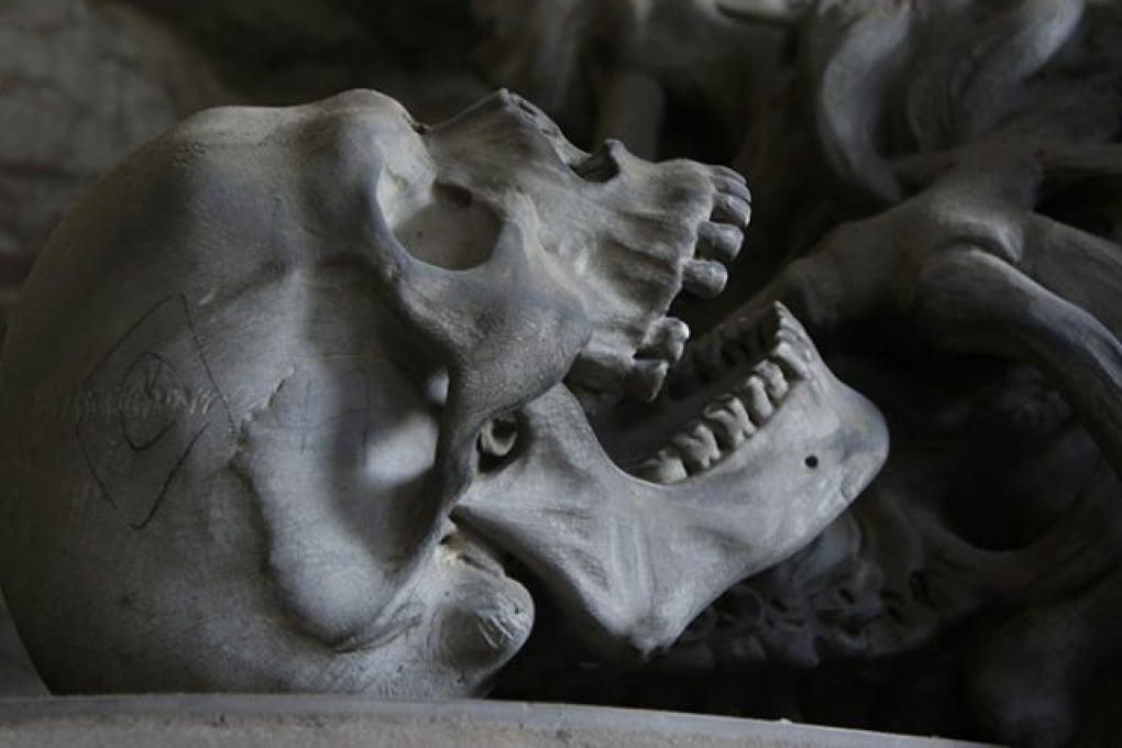 Macrosomia: il più antico caso di gigantismo umano proporzionato