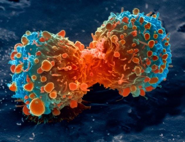 La tecnica CRISPR testata sull'uomo