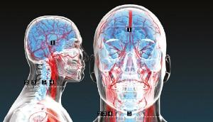 trapianti - chirurgia di frontiera: il trapianto di testa