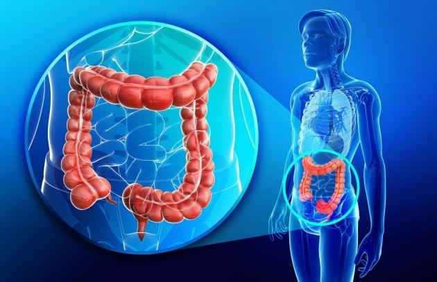 Morbo di Crohn: funghi e batteri scatenano l'infezione