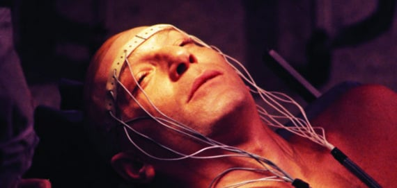 cervello, tdcs, stimolazione elettrica cerebrale, aggressività, violenza