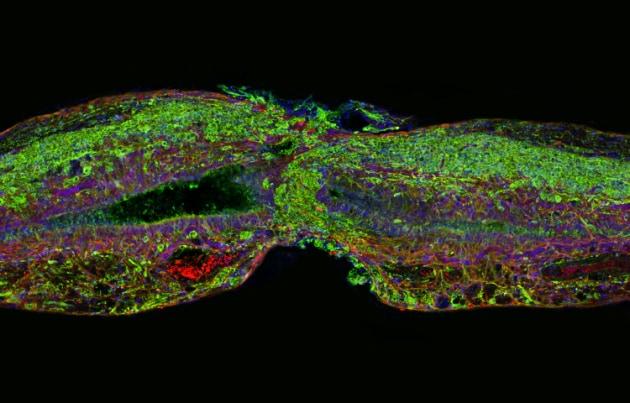 La proteina che rigenera il midollo spinale