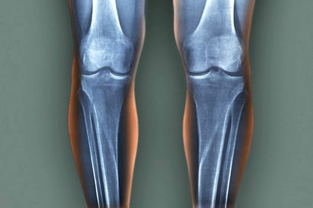 L'acciaio da costruzione ispirato alle ossa umane