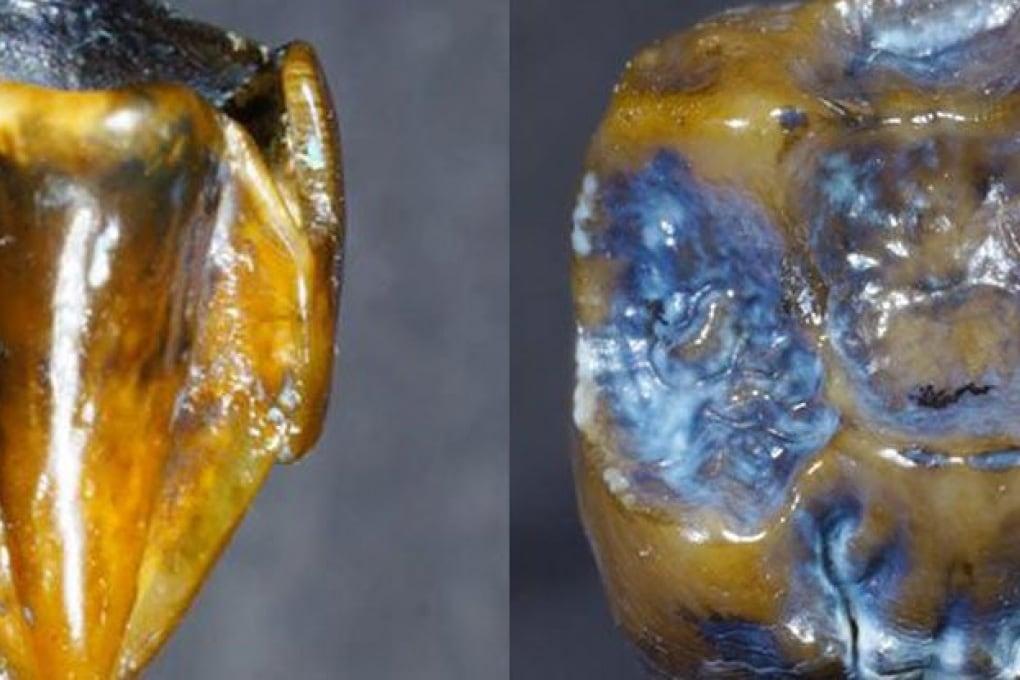 Perché la scoperta di denti di quasi 10 milioni di anni in Germania non riscrive la storia dell'uomo