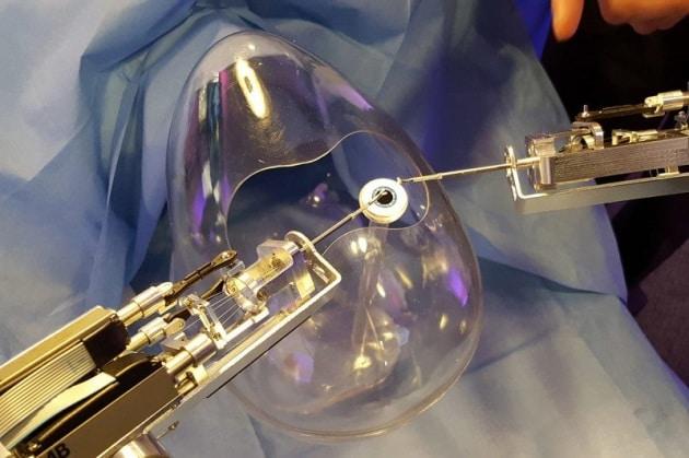 Il robot chirurgo che opera alla cataratta