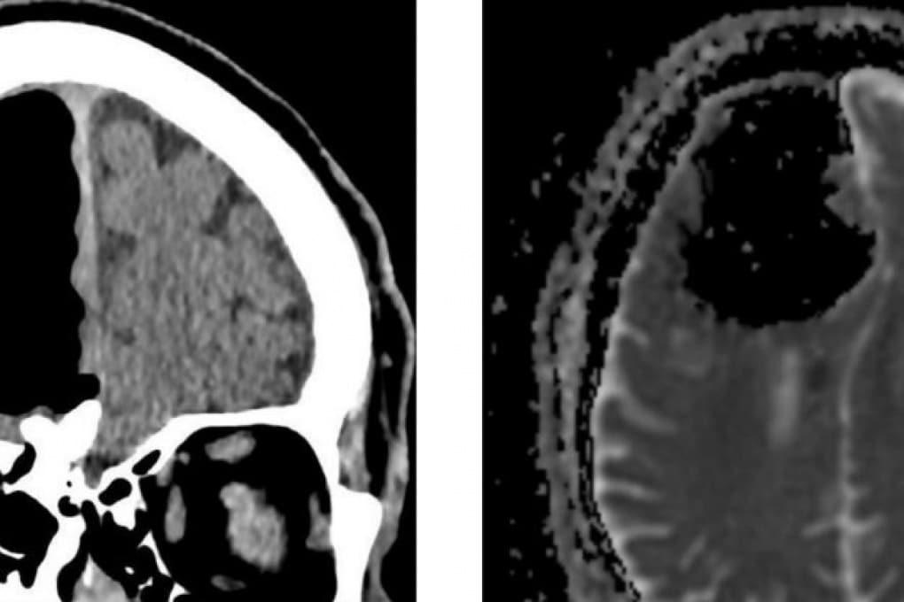 L'uomo con un buco nel cervello