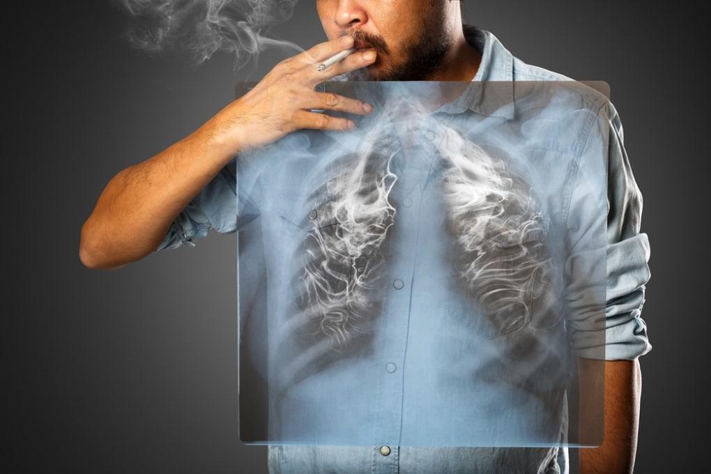 I fumatori hanno una percezione distorta dei rischi che corrono