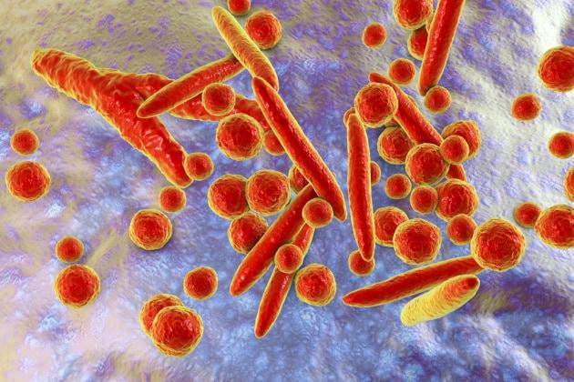Un super batterio trasmesso per via sessuale sta diventando resistente agli antibiotici