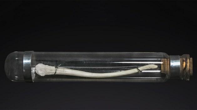 L'uomo aveva un osso nel pene è sparito per la monogamia
