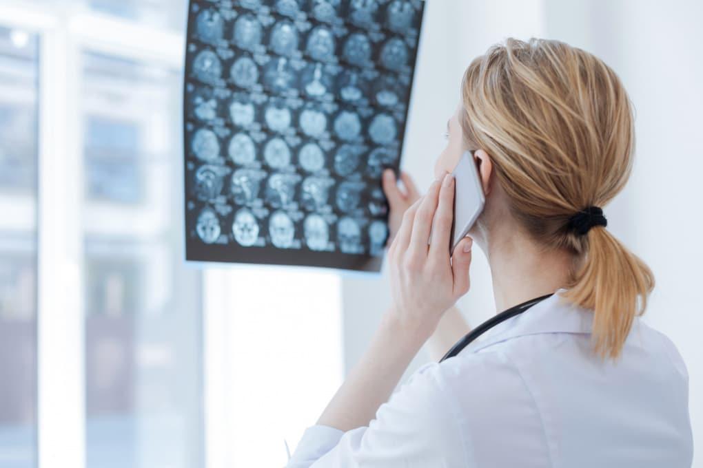 Tumori cerebrali e campi magnetici ad alta frequenza: nessuna associazione trovata